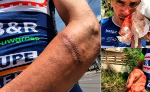 El ciclista francés Yoann Ofredo atacado con un bate y un cúter